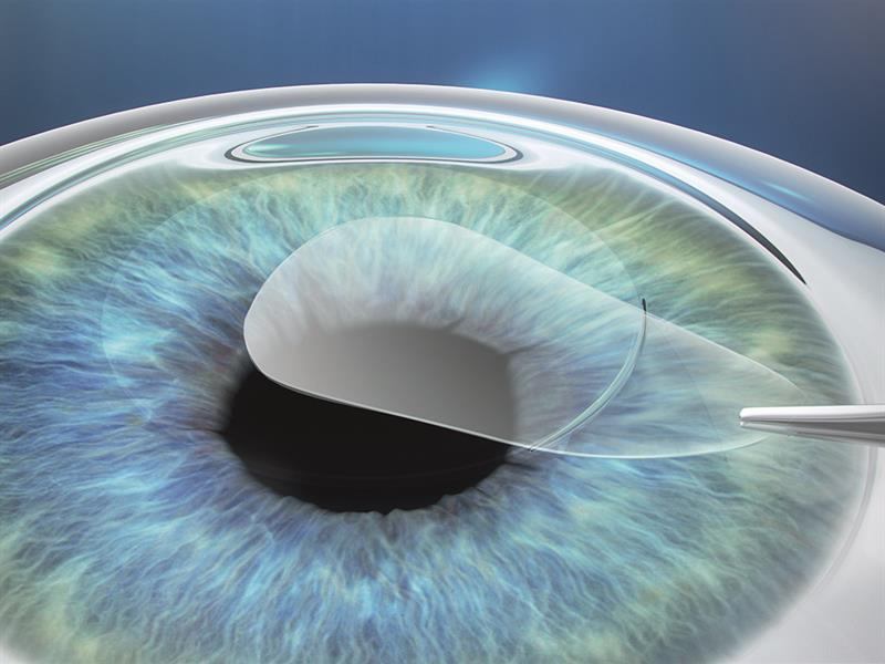 Best Place to Do Lasik in Chennai